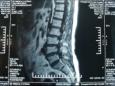 (健康成都)市五医院可微创治疗腰椎尖盘突出啦