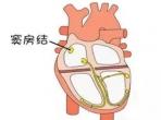 关于心率,你知道多少?