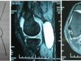 我院骨三科成功开展全关节镜下腘窝囊肿切除术