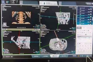 五医院肿瘤科成功开展CT引导下经皮胰腺穿刺活检术